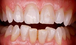 Before Invisalign and Whitening indian river county dentist