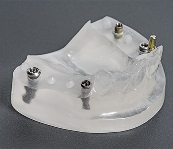 Model of all-on-4 implants in place