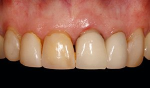 Damaged back teeth before indian river county dental care