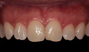 Patient with damaged teeth before vero beach dental bonding