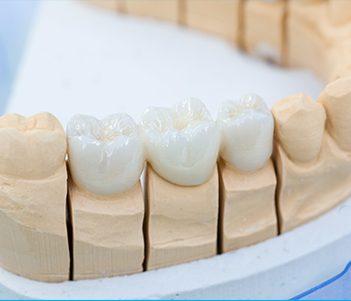 Dental Crowns Vero Beach | Fixed Bridges | Cosmetic Dentist