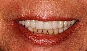 Flawless smile after indian river county full mouth dental rehabilitation