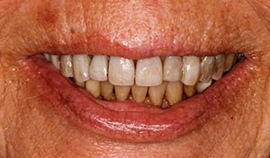 Severely damaged smile before indian river county full mouth dental rehabilitation