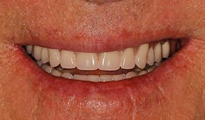 Full smile after lower implant retained denture placement vero beach
