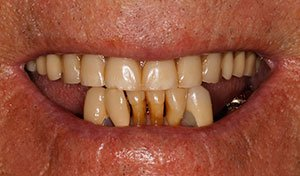 Missing bottom teeth before lower implant retained denture vero beach