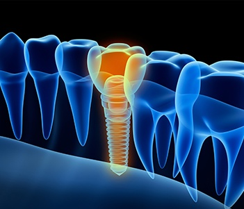 3D animaiton of implant suppored dental crown