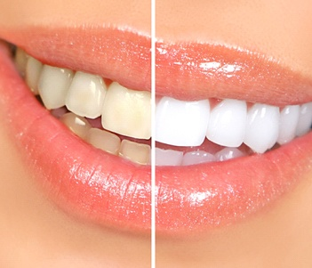 Before and after image of a teeth whitening treatment