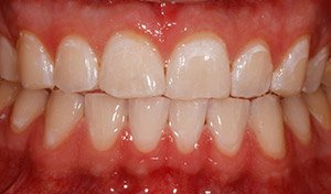 Vero Beach teeth whitening results from cosemtic dentist