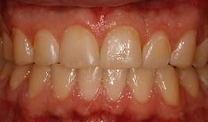 Discolored teeth before vero beach teeth whitening from cosemtic dentist