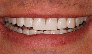 Flawless white smile after Indian river county teeth whitening cosmetic dentistry