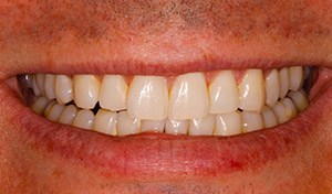 Discolored smile before indian river county cosemtic dentistry teeth whitening
